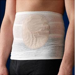 StomaSafe Classic Ostomy Support Garment