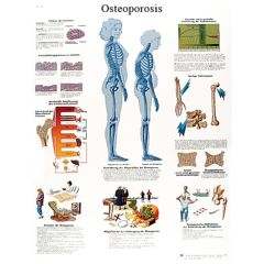 3b Scientific Anatomical Chart - Osteoporosis, Paper