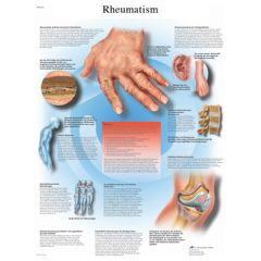 3b Scientific Anatomical Chart - Rheumatic Diseases, Laminated