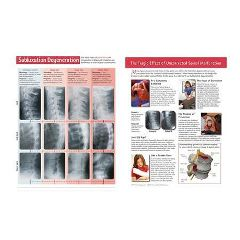 Back Talk Systems, Inc Subluxation Dengeration Handouts 50 Pack