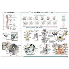 "J Martin True, Dc Dabcn Pa Common Disorders Of The Spine Poster 20"" X 30"""
