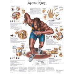 3b Scientific Anatomical Chart - Sports Injuries, Sticky Back