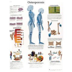 3b Scientific Anatomical Chart - Osteoporosis, Laminated