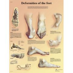 3b Scientific Anatomical Chart - Deformities Of The Feet Laminated