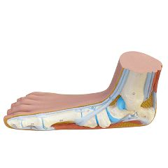 3b Scientific Anatomical Flat Foot (Pes Panus)