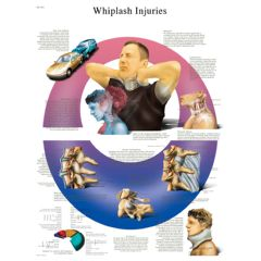 3b Scientific Anatomical Chart - Whiplash, Laminated