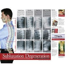 Back Talk Systems, Inc Subluxation Degeneration Laminated Poster