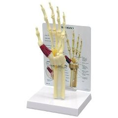Hand/Wrist Carpal Tunnel Syndrome with Key Card