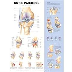 "Lippincott Knee Injury Chart 20"" X 26"" Styrene Plastic"
