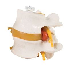 3B Scientific Anatomical Model - 2 Lumbar Vertebrae With Prolapsed Disc, Flexibly Mounted