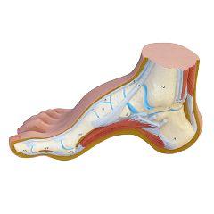 3b Scientific Anatomical Hollow Foot (Pes Cavus)