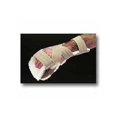 AliMed FREEDOM Progressive Resting Splint with AliFleece Glove