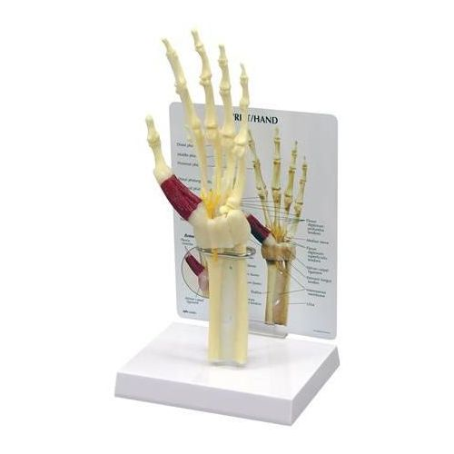 GPI Anatomicals, Inc Hand/Wrist Carpal Tunnel Syndrome with Key Card Model 734 0026
