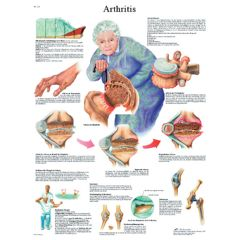 3b Scientific Anatomical Chart - Arthritis, Laminated