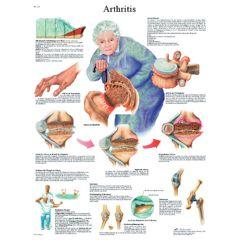 3b Scientific Anatomical Chart - Arthritis, Laminated