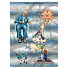 3b Scientific Anatomical Chart - Parkinson's Disease, Paper
