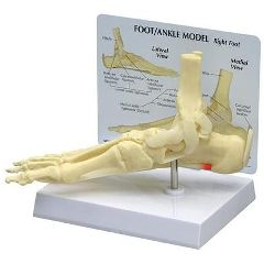 Ankle/Foot Plantar Fasciitis with Key Card