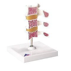 3B Scientific Anatomical Model - Deluxe Osteoporosis Model (3 Vertebrae)