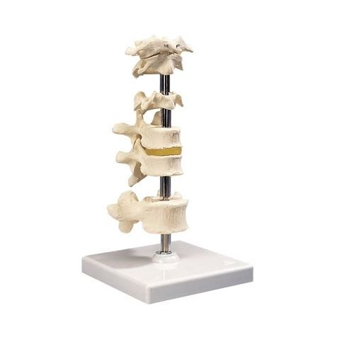 3B Scientific Anatomical Model - 5 Mounted Vertebrae With Removable Stand Model 573 571283 00