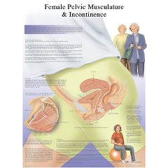 3b Scientific Anatomical Chart - Female Urinary Incontinence Chart, Laminated