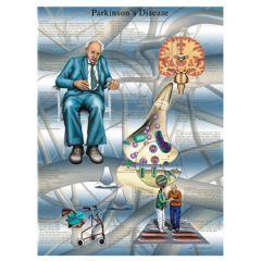 3b Scientific Anatomical Chart - Parkinson's Disease, Laminated - Anatomical Chart - Parkinson'S Disease, Laminated