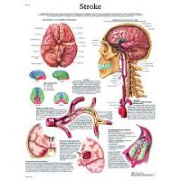 3b Scientific Anatomical Chart - Stroke Chart, Laminated - Anatomical Chart - Stroke Chart, Laminated