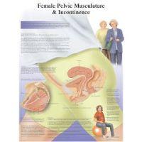 3b Scientific Anatomical Chart - Female Urinary Incontinence Chart, Paper - Anatomical Chart - Female Urinary Incontinence Chart, Paper