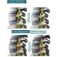 BodyPartChart Spinal Degeneration Series - Wall Decal