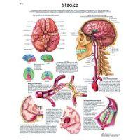 3b Scientific Anatomical Chart - Stroke Chart Paper - Anatomical Chart - Stroke Chart Paper