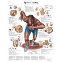 3b Scientific Anatomical Chart - Sports Injuries, Laminated - Anatomical Chart - Sports Injuries, Laminated