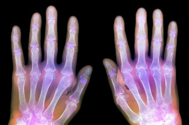 "Living ""Young"" Despite Rheumatoid Arthritis - Patricia's Story"
