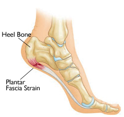 Tips For Relieving Plantar Fasciitis Pain