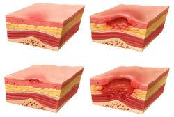 Dangers of Pressure Ulcers, Pressure Sores, or Decubitus Ulcers