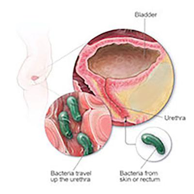Medline Erase CAUTI Silicone Catheter Insertion Kit